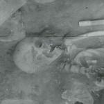 Orlea, jud. Olt, Situl arheologic